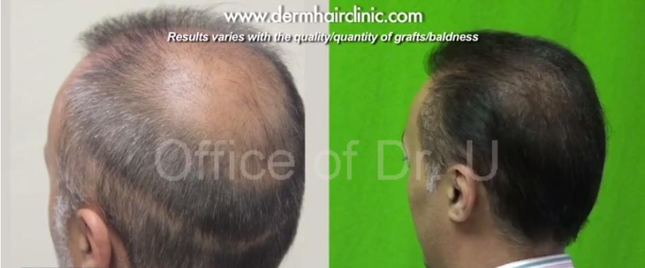 Crown and Strip Scar| Hair Transplant Repair- 6000 Grafts
