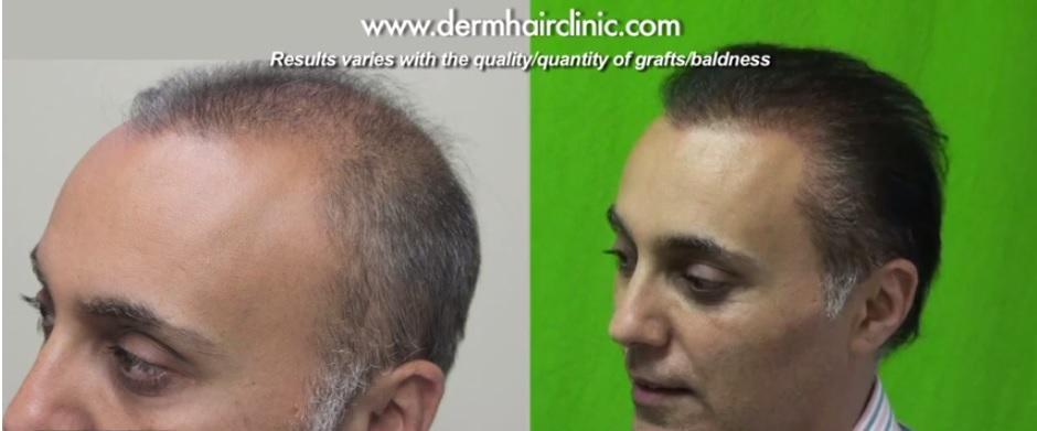 Beard and Head Hair|Transplant Surgery