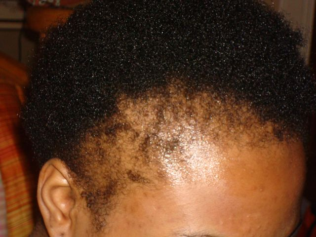 Traction Alopecia and Hair Care For Black Women