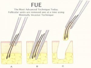 The process of a typical FUE hair transplant procedure