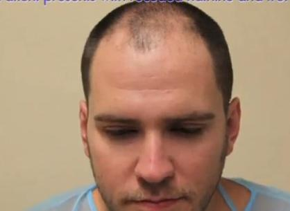 Patient Prior to His FUE Hairline Restoration Surgery