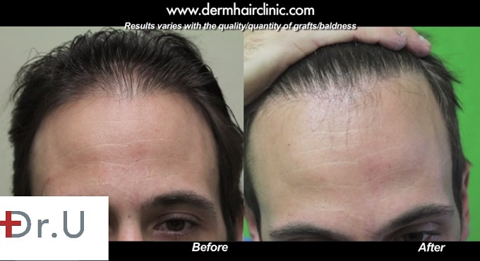 Celebrity Hair Transplant of Bernardo De Paulo: Patient's Hairline Edge| Natural Looking Results