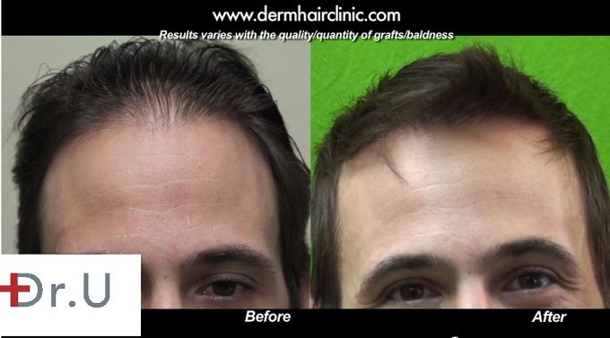 Celebrity Patient's FUE Hairline Restoration| New Hair Style