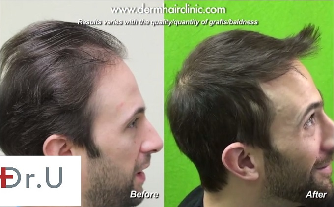Profile View of Hairline and Temple Restoration| FUE Results