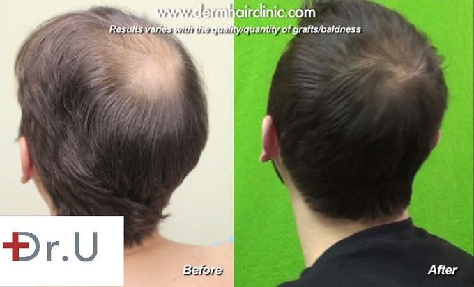 Crown Hair Restoration| FUE- Celebrity Hair Restoration