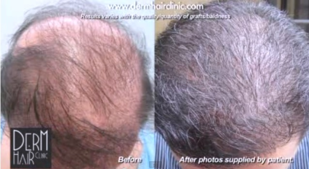 Before and after Advanced FUE surgery. Beard hair grafts were used to provide abundant coverage