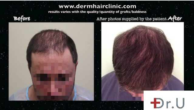 Hairline Recession| Before and After Hair Transplant Procedure