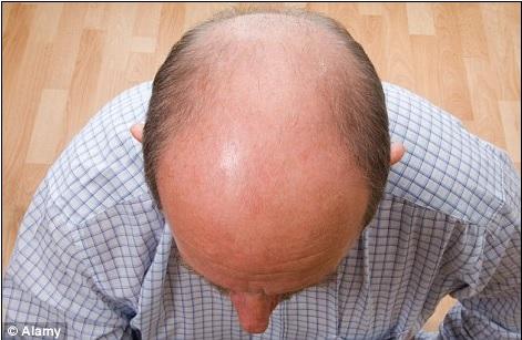 hair-restoration-03423