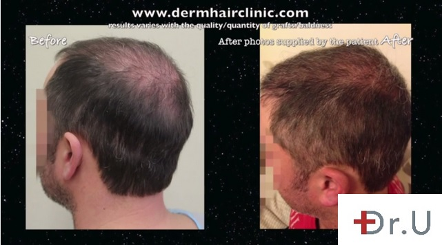 Side of Head and Vertex| New Coverage With BHT Surgery - 8000 Grafts