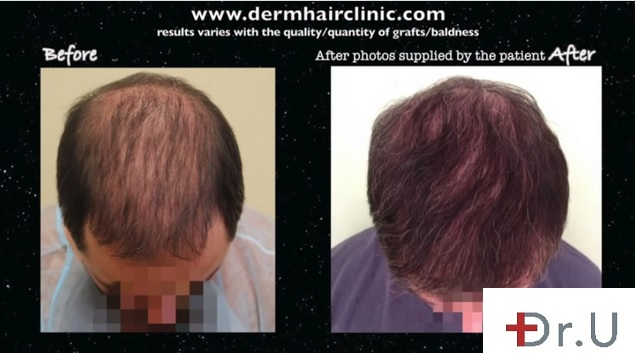 BHT Hair Surgery For Scar, Crown, Top and Hairline - 8000 UGraft Patient Photos