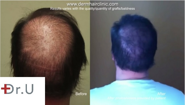 beard hair to head transplant 7000 grafts Crown Hair Restoration|