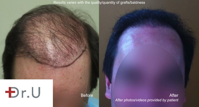 Beard Hair to head transplant 7000 grafts Hairline Results