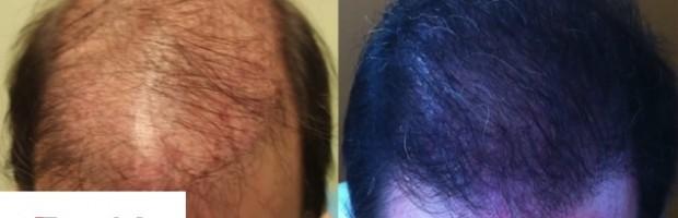 Successful Repair With Body Follicles