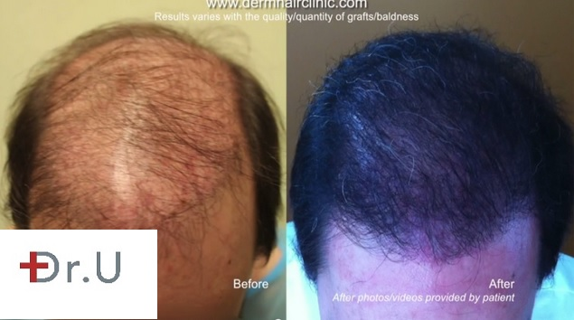 Successful Repair With Body Follicles