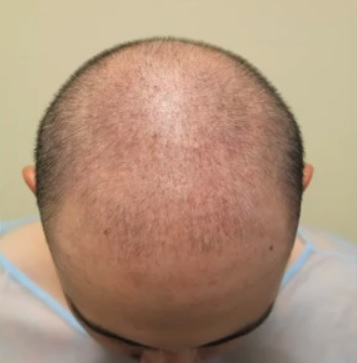 Patient With Genetic Hair Loss