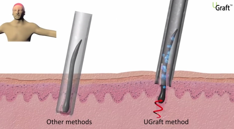 Advanced FUE uGraft mechanism