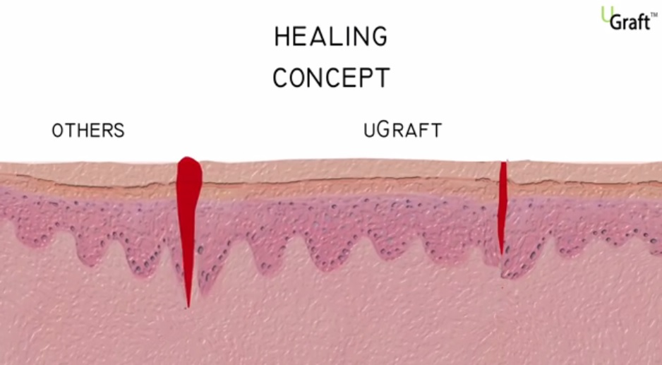 The top portion of an inverted wound edge (UGraft - UPunch Rotor wounds) would close ahead of that of an everted wound edge (Other FUE Punches), resulting in a better cosmetic outcome.