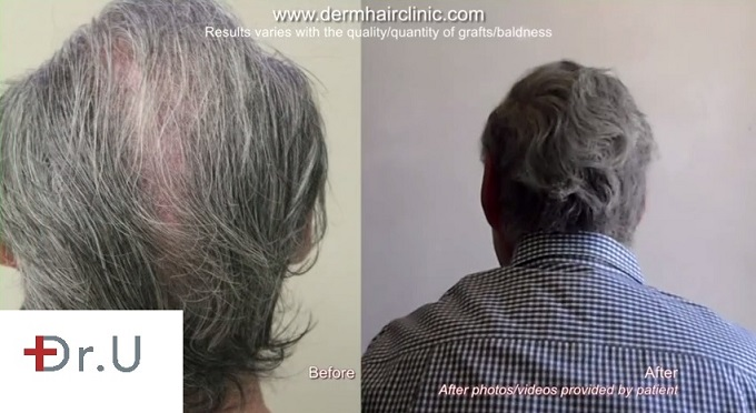 Crown Restoration| Renewed Coverage and Density with Body Hair Grafts