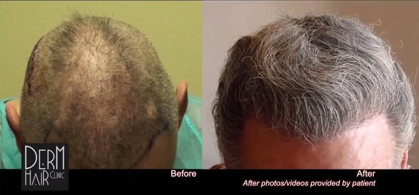 curly hair grafts - hair transplants