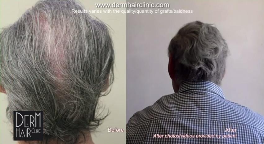 facial-hair-to-head-transplant-045622
