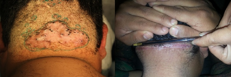 Surgical Removal of AKN Bumps