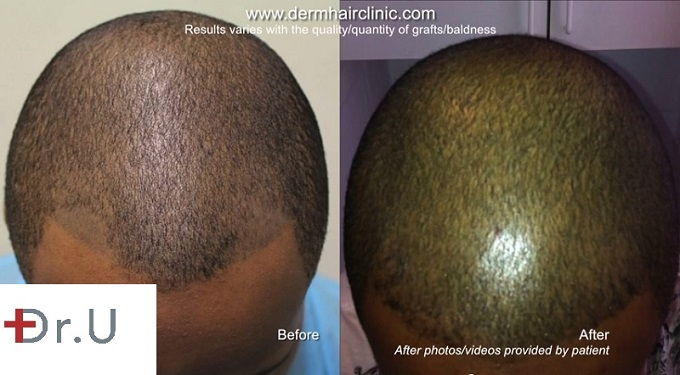 Frontal View of Scalp - Before and After FUE Hair Transplant Repairs Bad Scalp Micropigmentation