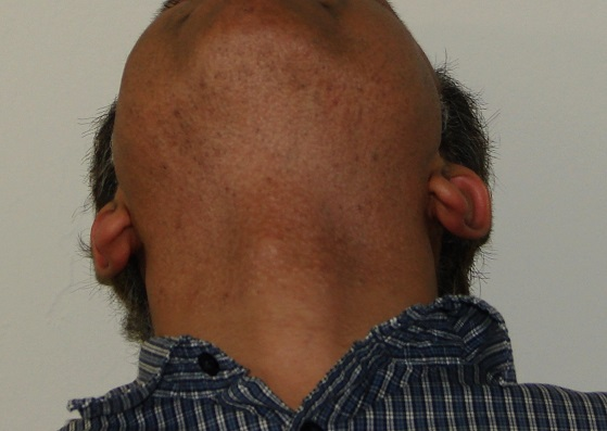 Beard area after over 5000 grafts extraction by UGraft in a person of color