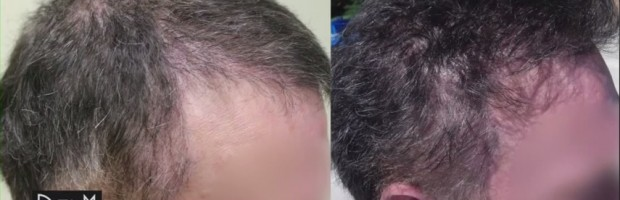 Body Hair Transplant For Coverage and New Hairline