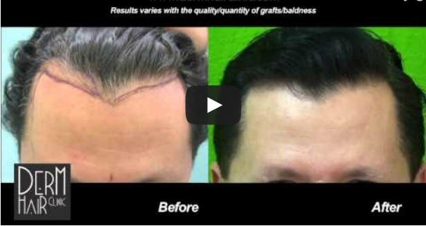FUE hairline restoration results