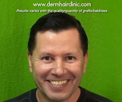 hair restoration options