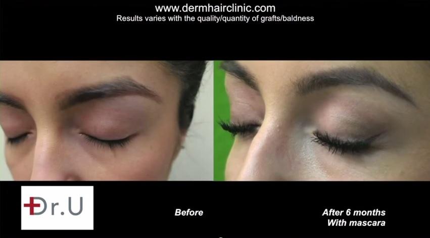 Side View of Eyelash Transplant Results