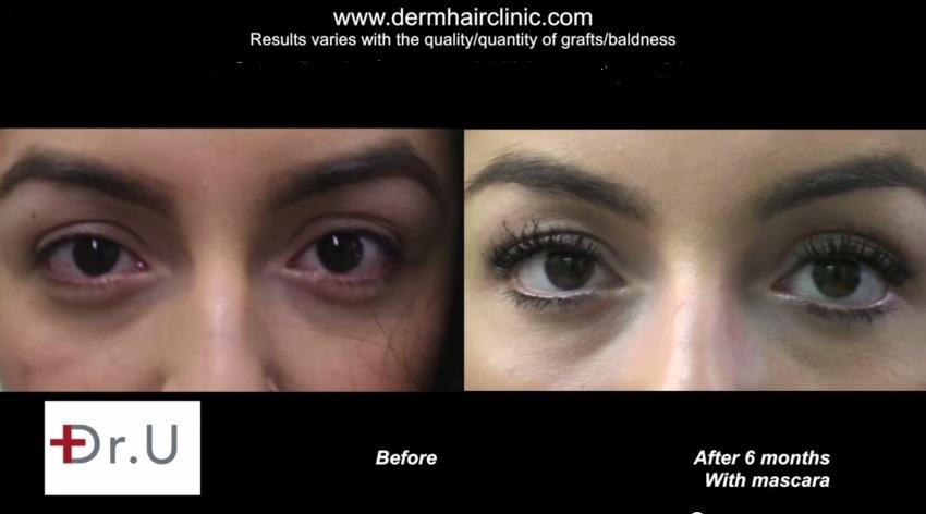 Eyelash transplant using leg hair Results| Forward Front Facing View