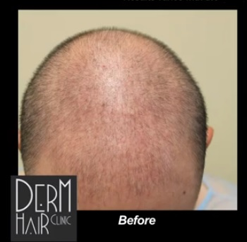 hair loss in male patient