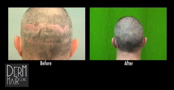 FUE for strip scar repair
