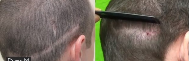 FUE Repairs Strip Surgery Results