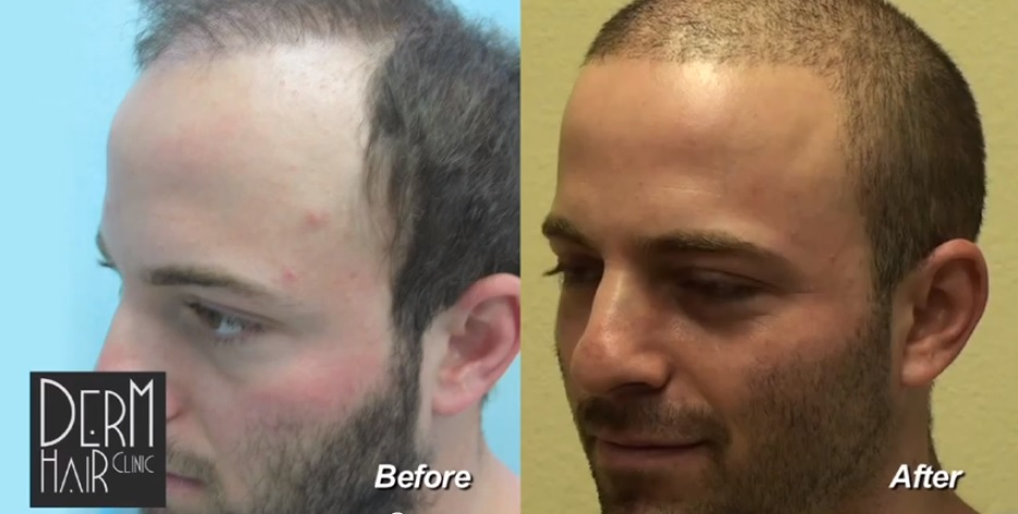 hair transplant using body hair