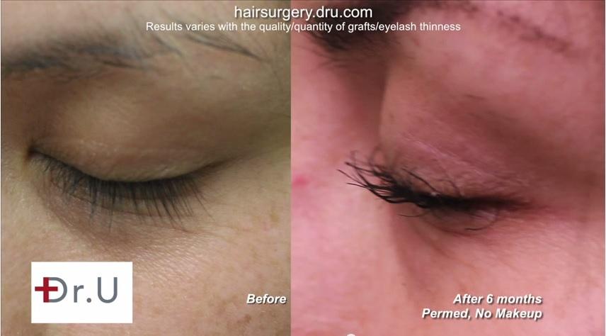 eyelash FUE hair transplantt| No Mascara on Lashes