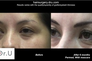 eyelash transplant| before and after surgery for restoration