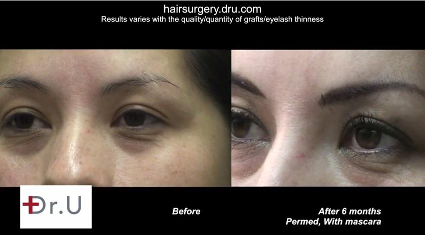 Three Quarters View| eyelash FUE hair transplant Results