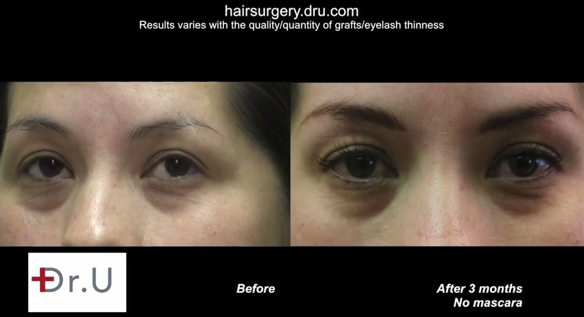 UGraft Eyelash FUE Hair Transplant Video Results Before and After New Lashes - Nape Hair Grafts