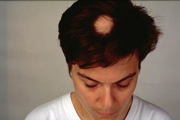 Hair Loss Patient With Alopecia Areata