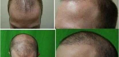 Treating Hair Loss Through Surgery