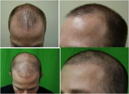 Treating Hair Loss Through Surgery