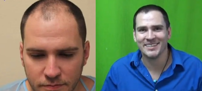 FUE hair transplant| Head Hair Only