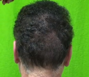 graft number per hair transplant session - what is the maximum?