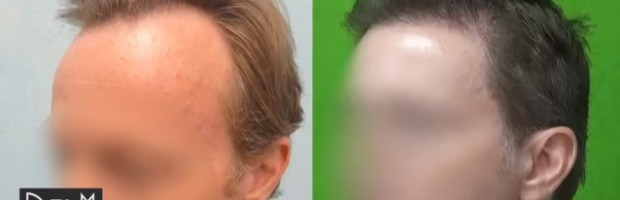 Hairline Restoration Results For Male Pattern Baldness