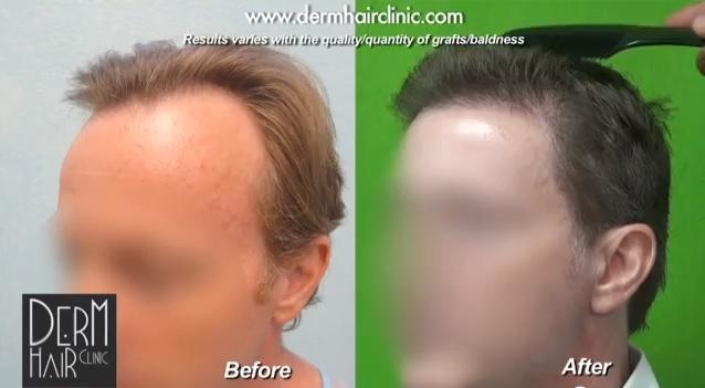 Treating hair loss with hair loss treatment products. hair loss treatment with surgery