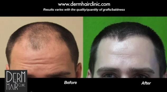 FUE hair transplant patient - Dr. U