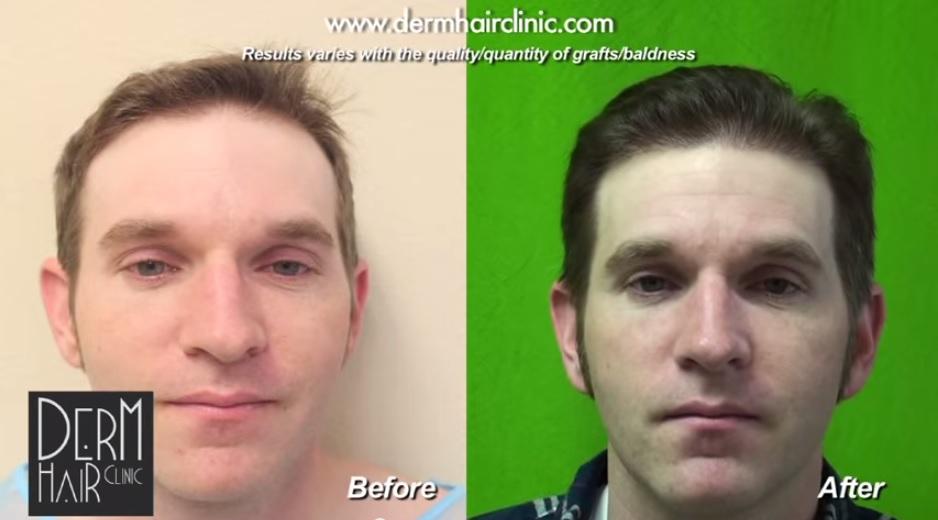 benefits of serpina tablets