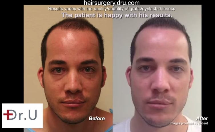 FUE Patient  Before and After FUE hair transplant